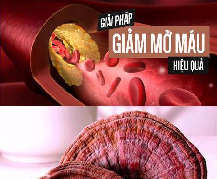 Đẩy lùi bệnh mỡ trong máu hiệu quả bằng Nấm Linh Chi